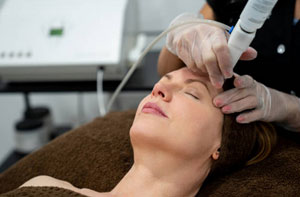 Microdermabrasion Featherstone West Yorkshire