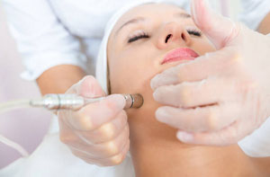 Microdermabrasion Great Yarmouth Norfolk